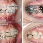 Các bước trong quá trình niềng răng là vẫn đề được nhiều người quan tâm