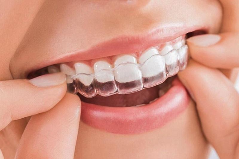 Niềng răng trong suốt mang lại hiệu quả thảm mỹ tuyệt vời