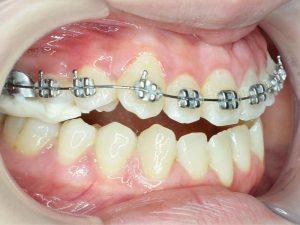 Không phải trường hợp nào cũng thực hiện niềng răng 1 hàm được