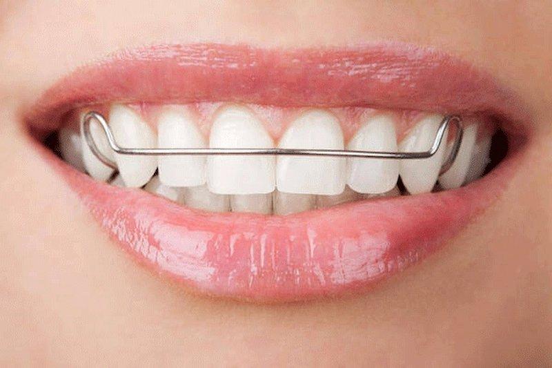 Tổng chi phí niềng răng 1 hàm phụ thuộc vào nhiều yếu tố khác nhau