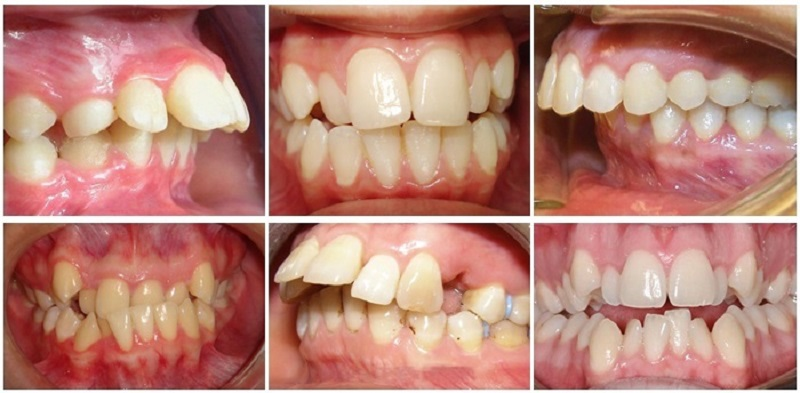 Niềng răng 2 hàm giá bao nhiêu cũng phụ thuộc vào tình trạng răng miệng của mỗi người