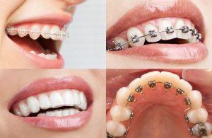Chi phí niềng răng 2 hàm là mỗi quan tâm hàng đầu của nhiều khách hàng