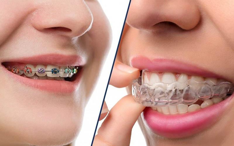 Tùy loại mắc cài sử dụng mà giá niềng răng có sự khác biệt nhất định