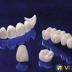 Công nghệ chế tác răng sứ số 1 Việt Nam
