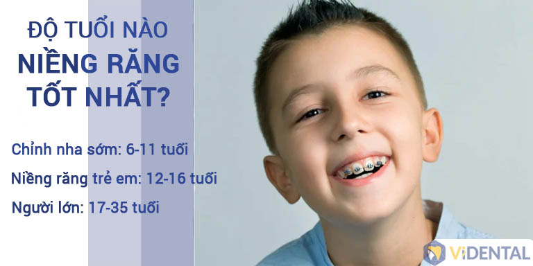 Độ tuổi thích hợp phụ huynh có thể yên tâm để trẻ niềng răng
