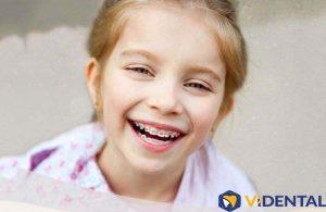 Niềng răng cho trẻ em tại Viện Nha khoa Vidental