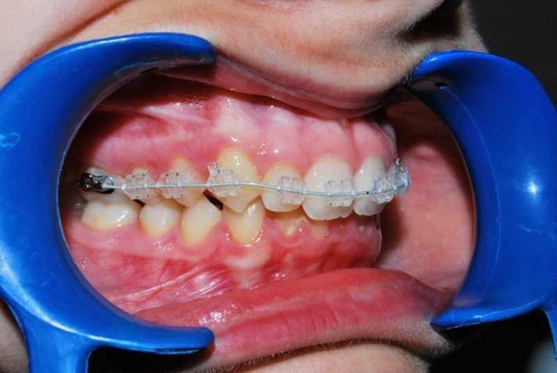 Quy trình niềng răng tại các phòng khám cơ bản giống nhau