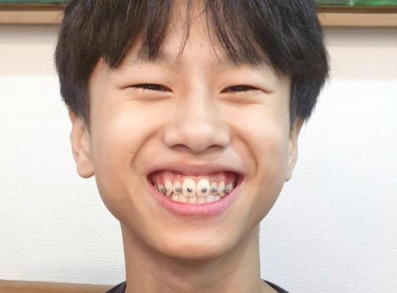 Độ tuổi từ 6 - 11 chưa phải là độ tuổi tốt nhất để niềng răng