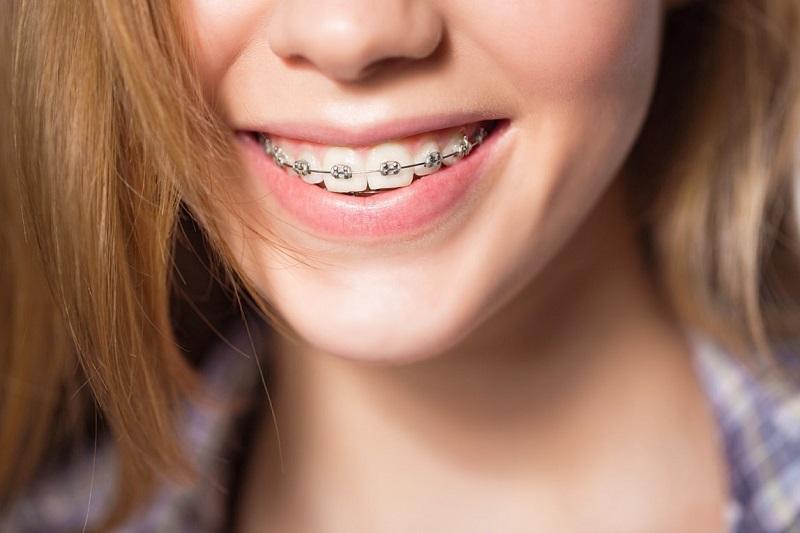 Từ 17 tuổi trở lên vẫn có thể niềng răng nhưng không tốt bằng thời điểm 12 - 16 tuổi