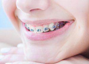 Rất nhiều người muốn hỏi nên niềng răng bao nhiêu tuổi là phù hợp