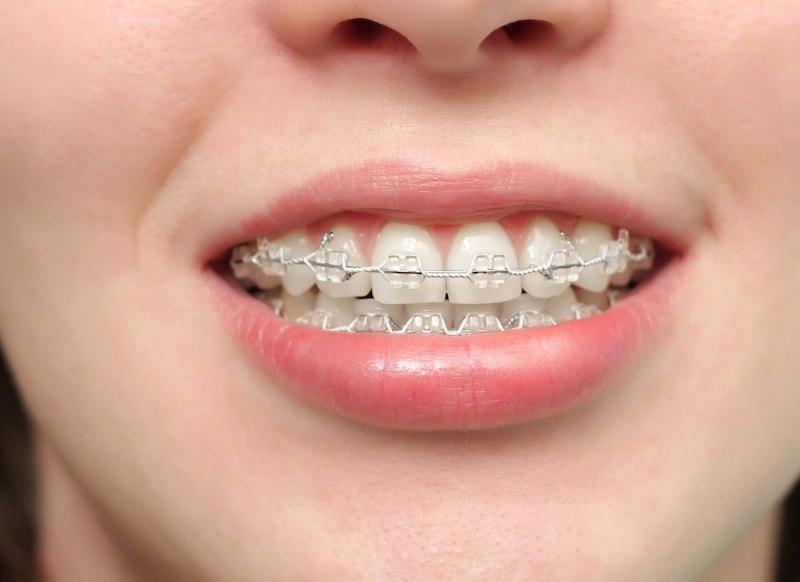 Niềng răng ở bệnh viện Răng Hàm Mặt được đánh giá có mức chi phí tương đối hợp lý