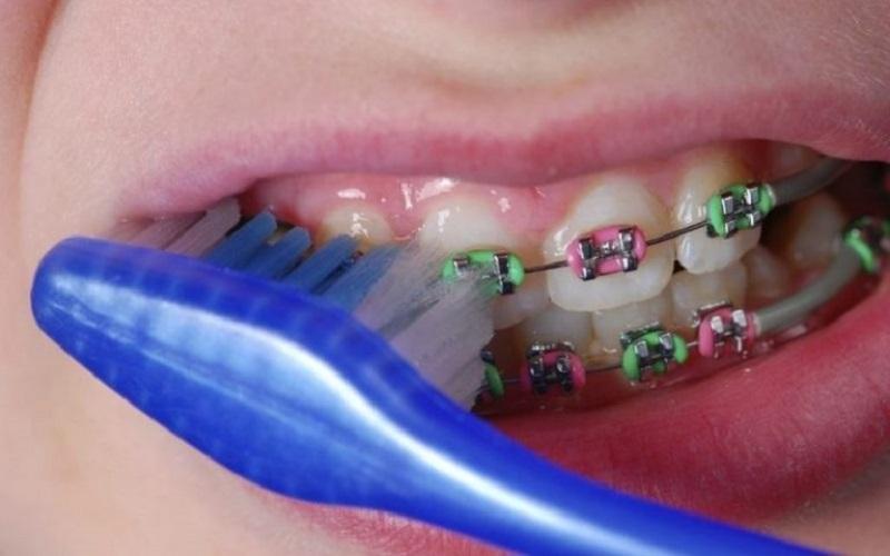 Niềng răng bị tụt lợi do ảnh hưởng của vệ sinh răng miệng chưa đúng