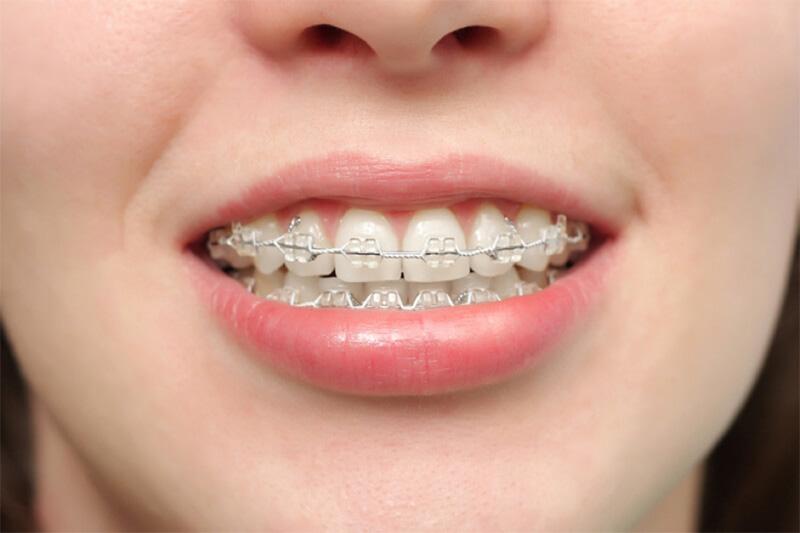 Nhiều người lựa chọn tháo niềng răng sớm trước thời gian quy định