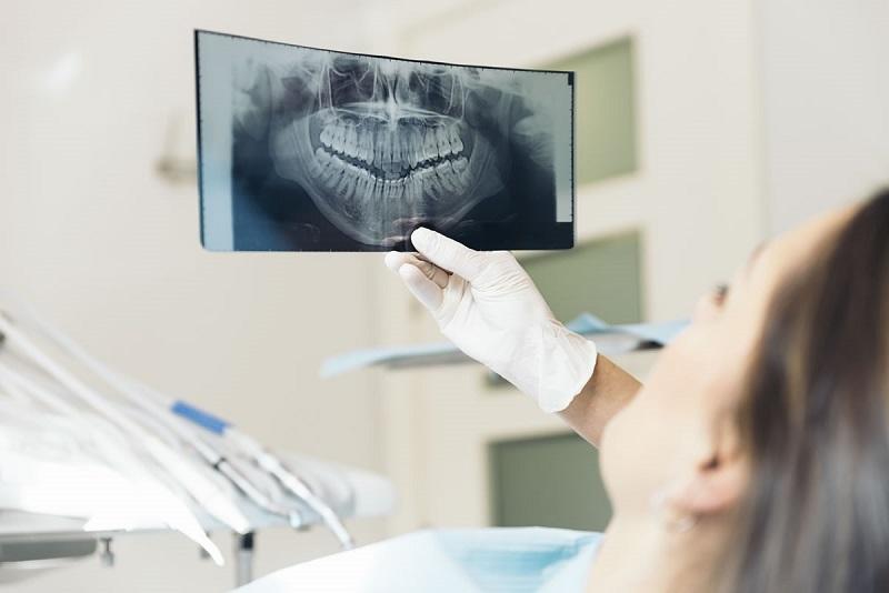 Niềng răng xong bị hô lại bạn cần liên hệ nha sĩ của mình để đưa ra cách khắc phục