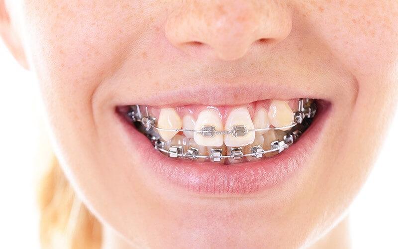 Niềng răng khớp cắn sâu giúp chỉnh nha hiệu quả