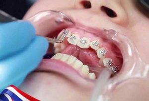 Thực hiện niềng răng khớp cắn sâu có hiệu quả không? Quy trình thực hiện chi tiết