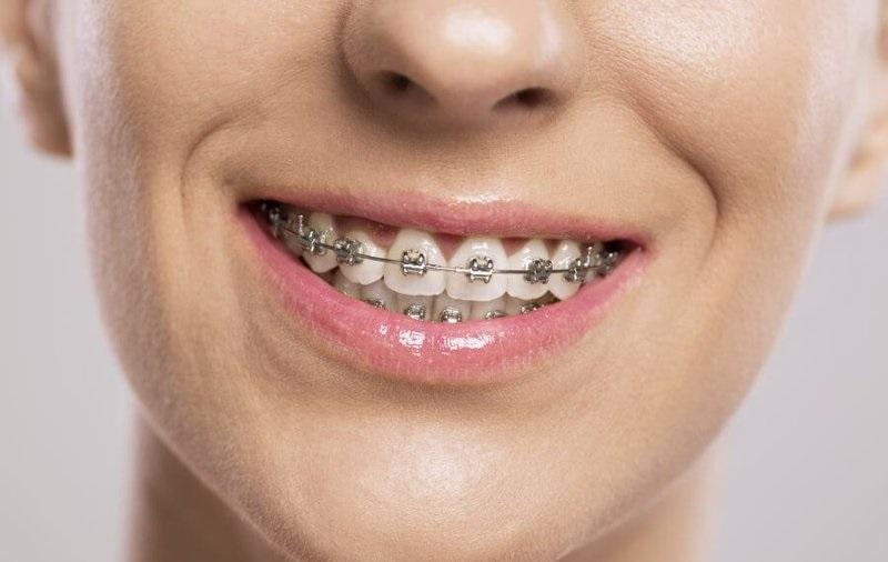 Niềng răng lệch khớp cắn mắc cài kim loại là phương pháp niềng răng phổ biến nhất hiện nay