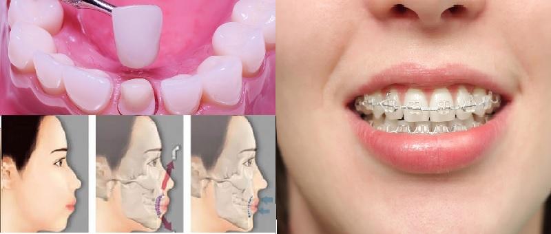 Các kỹ thuật chỉnh nha khi răng bị sai khớp cắn