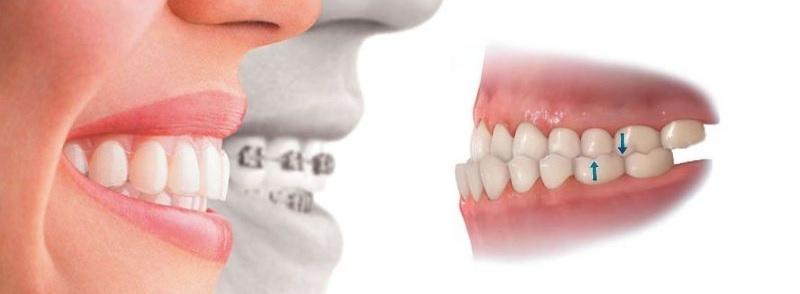 Quá trình niềng răng móm mất bao nhiêu tiền là thắc mắc của nhiều người