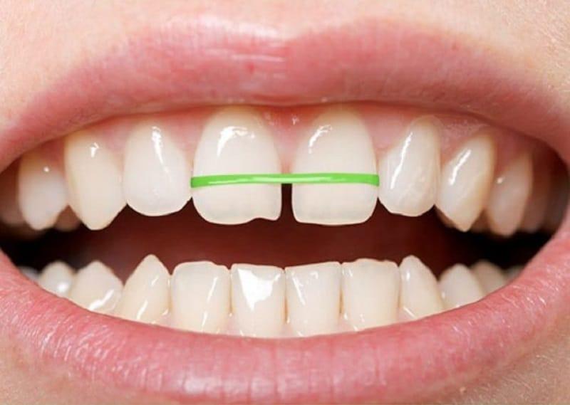 Sử dụng dây chun để tự niềng răng tại nhà