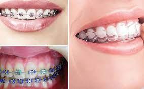 Có nên thực hiện niềng răng tại nhà hay không? Chuyên gia tư vấn