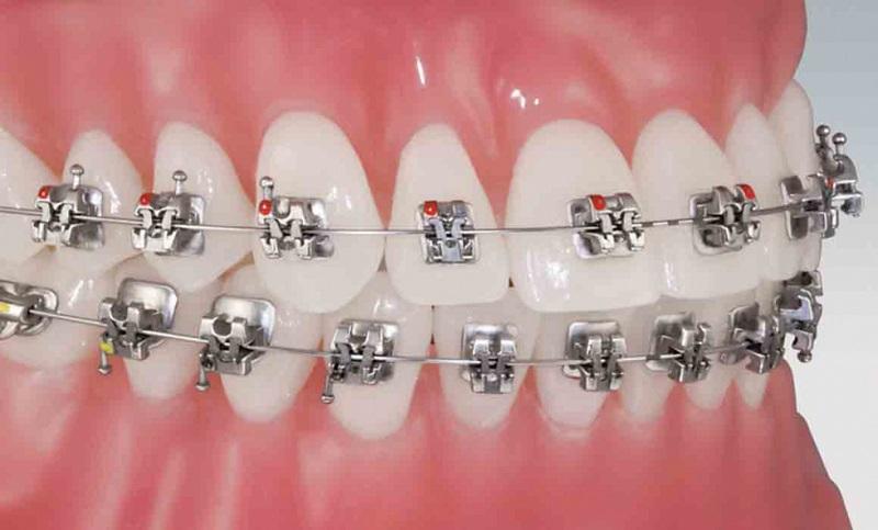Mắc cài của niềng răng dễ dàng làm cho hàm răng hơi hô ra
