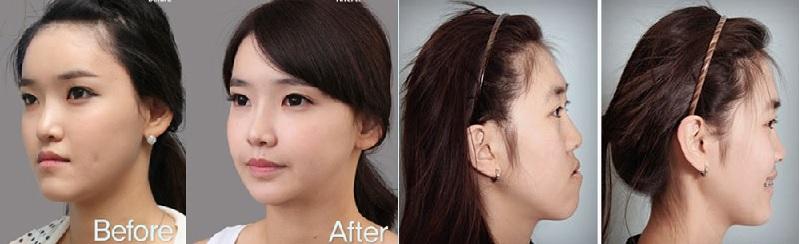 Quá trình nắn chỉnh răng đều và thẳng hơn cũng làm góc mũi thay đổi theo