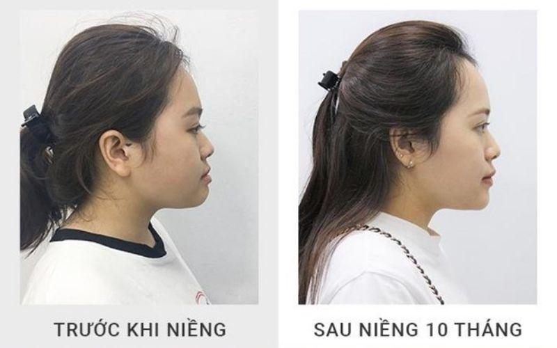 Niềng răng trước và sau giúp thay đổi góc nghiêng