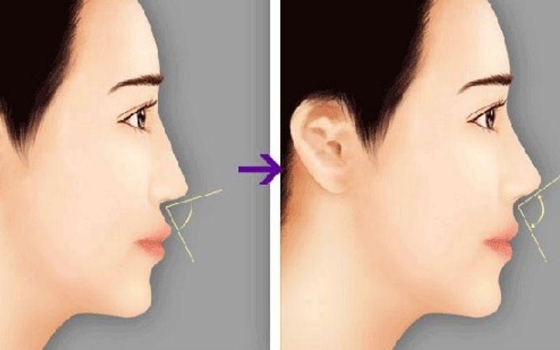 Hình ảnh mũi sau niềng răng có sự thay đổi