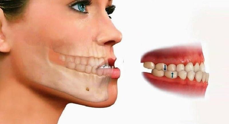 Niềng răng xong bị móm là thất bại vô cùng lớn của kỹ thuật chỉnh nha