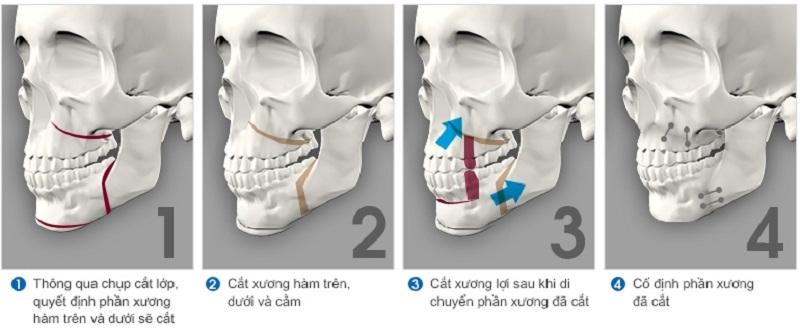 Phẫu thuật cắt xương hàm dưới do thay đổi cấu trúc xương hàm