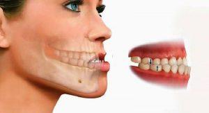 Niềng răng xong bị móm là vấn đề đau đầu của nhiều người