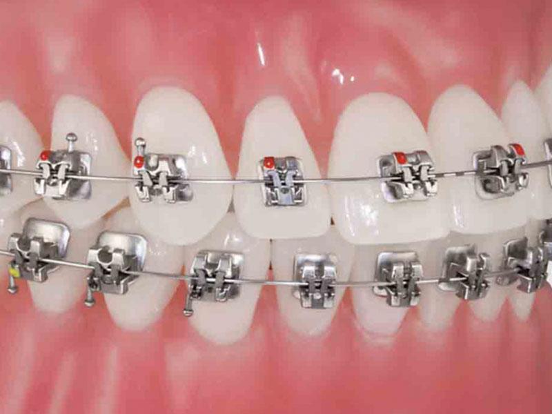 Thăm khám tại các cơ sở nha khoa để có phương án khắc phục tình trạng niềng răng không hiệu quả