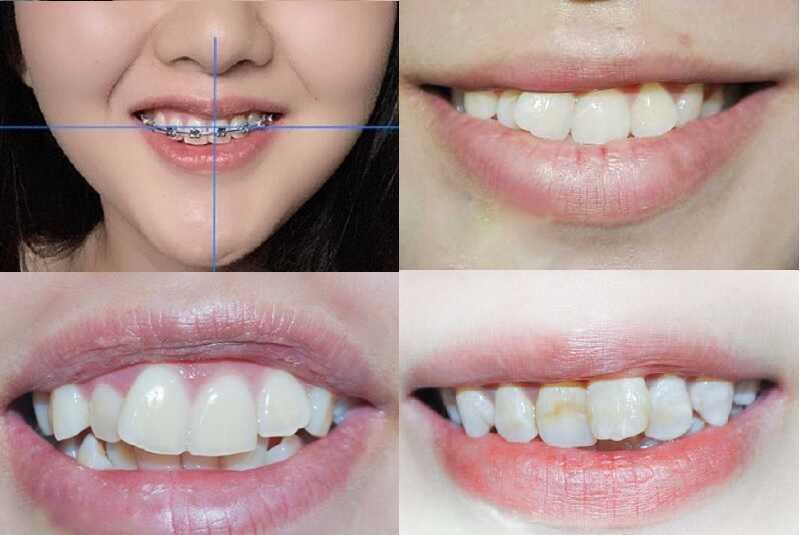 Răng lệch nhân trung là trường hợp phần kẽ hai răng cửa sẽ bị lệch sang trái, hoặc lệch sang phải so với đường nhân trung