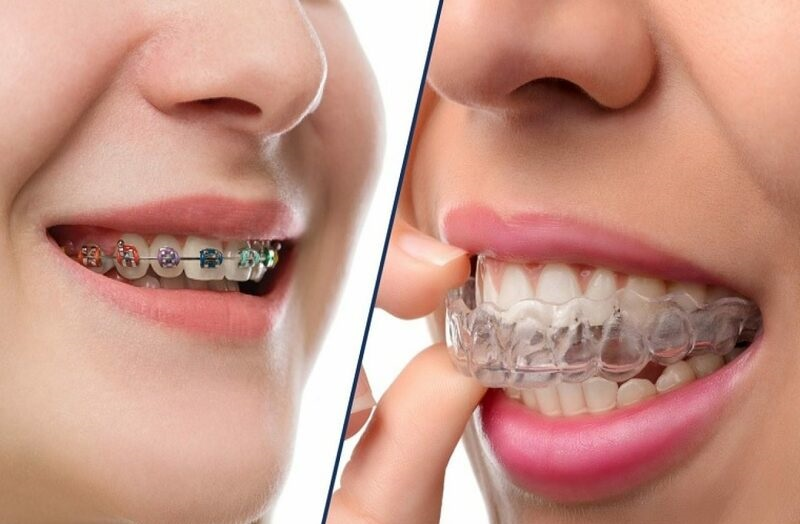 Niềng răng là phương pháp giúp khắc phục tình trạng sai lệch răng phổ biến nhất