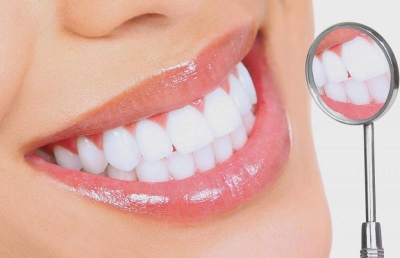 Bọc răng sứ cũng là giải pháp hiệu quả giúp cải thiện các nhược điểm của hàm răng