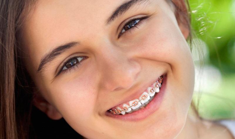 """Trẻ bao nhiêu tuổi thì niềng răng được? Thời điểm """"vàng"""" để niềng răng cho trẻ là từ 11 - 16 tuổi"""