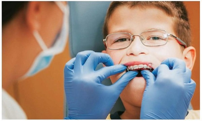 Trẻ bao nhiêu tuổi thì niềng răng được - Thăm khám nha khoa định kỳ để biết chính xác câu trả lời