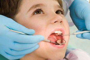 Trẻ bao nhiêu tuổi thì niềng răng được