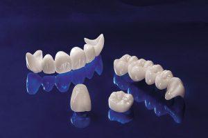 Kỹ thuật bọc răng sứ cercon giá bao nhiêu là hợp lý nhất?