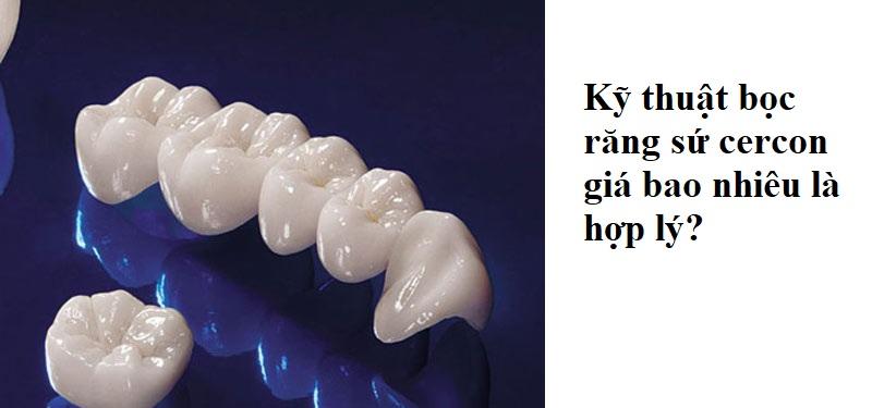 Kỹ thuật bọc răng sứ cercon giá bao nhiêu là hợp lý?