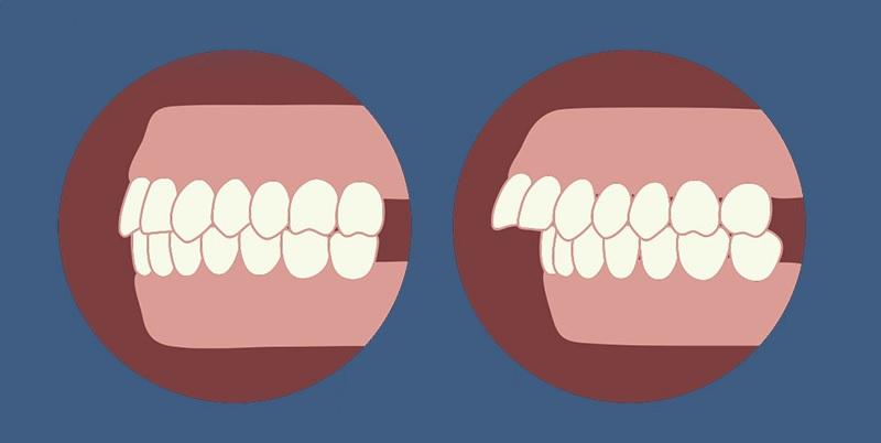 Việc bọc răng sứ cho răng hô có hiệu quả hay không?