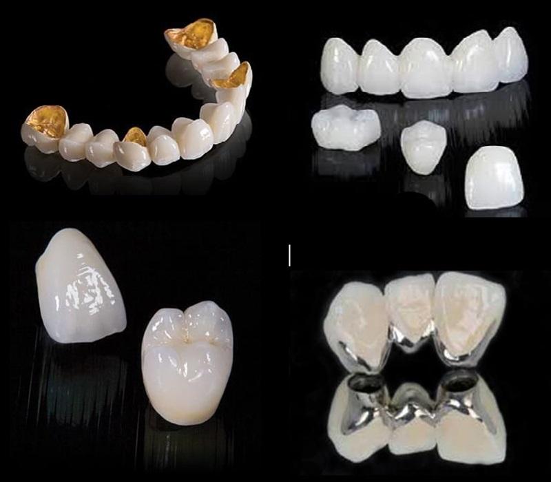 Niềng răng sứ đắt hay rẻ phụ thuộc vào loại sứ và số lượng răng cần làm