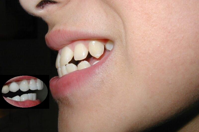 Bọc răng sứ cho răng hô giúp hàm răng thẳng, đều, đẹp hơn