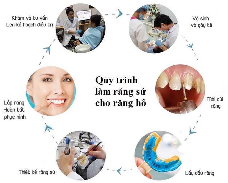Quy trình bọc sứ cho răng hô hiệu quả cao