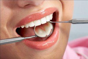 Bọc răng sứ Titan giá bao nhiêu và các địa chỉ bọc răng giá tốt