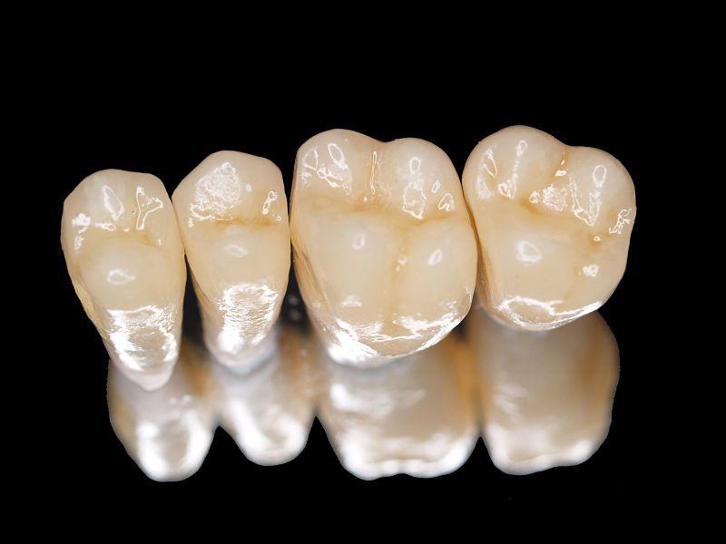 Bọc răng sứ Titan là phương pháp chỉnh nha phổ biến hiện nay