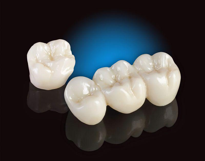 Răng Tian có độ bền tốt và an toàn trong khoang miệng