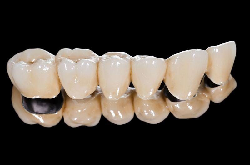 Răng sứ Titan hiện nay có 3 loại chính