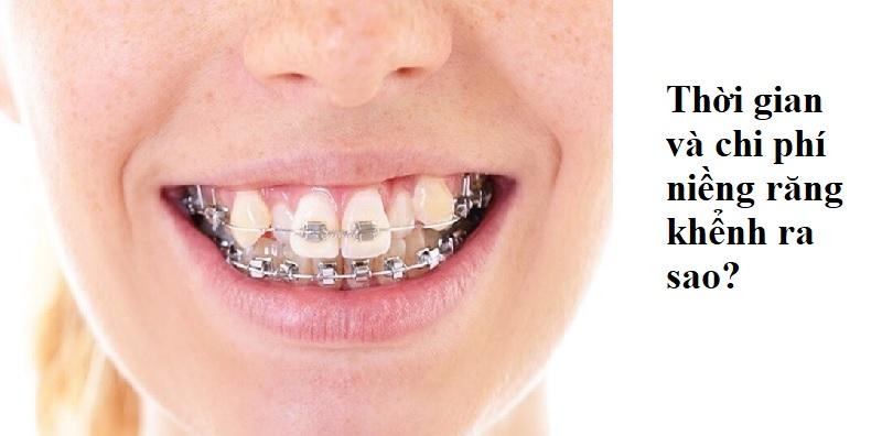 Thời gian và chi phí niềng răng khểnh như thế nào?